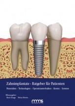 Ratgeber Implantate Fachbuch Implantatratgeber Patient Zahnimplantate